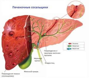 паразиты кишечника энциклопедия