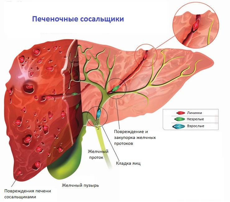 какие паразиты живут в кишечнике человека фото
