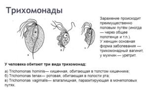 Кишечная трихомонада строение жизненный цикл диагностика и профилактика заболевания
