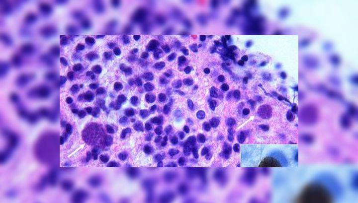 паразиты в костях человека