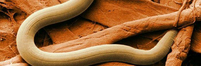 признаки наличия паразитов в организме человека