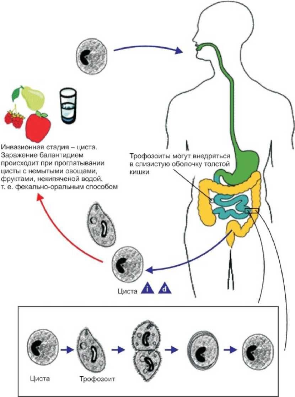 черви в животе человека картинки