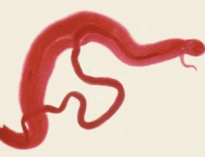 Шистосома или кровяной сосальщик