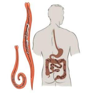 Поражение паразитами органов человека