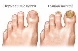 Сравнение нормального ногтя и пораженного грибком