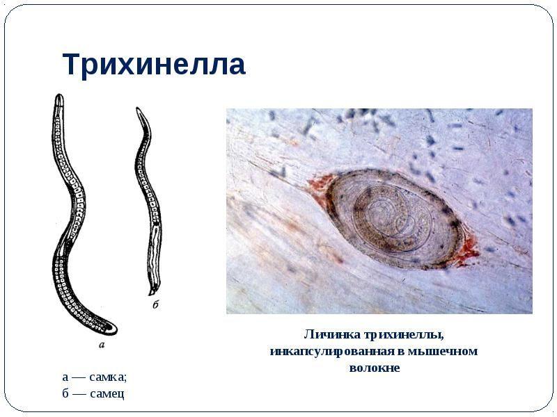паразиты в мышцах человека фото