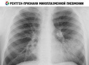Рентген-признаки микоплазменной пневмонии