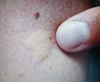 филяриоз мансонеллез под кожей